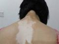 女性白癜风的症状表现有什么